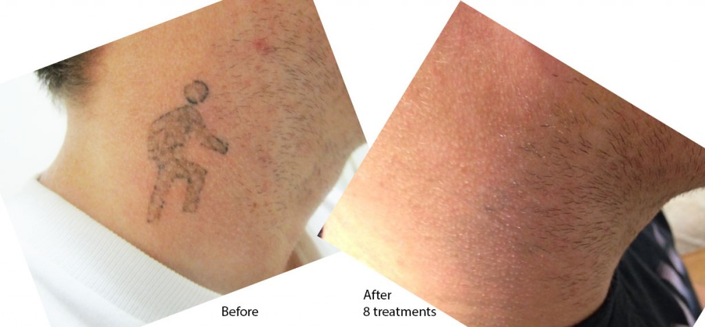 After 8 Tattoo removal treatments, this tattoo has completely vanished!